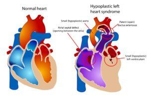 Hipoplastiese linkerventrikel: die linkerventrikel se wand is dik, maar onfunksioneel. Die hart kan nie bloed deur die liggaam pomp nie.
