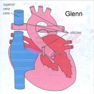 glenn-shunt