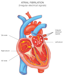 Hart met atriale fibrillasie. Sleutels: SN= SINUS NODE, AVN = ATRIOVENTRIKULêR NODE, BB = BONDELTAKKE