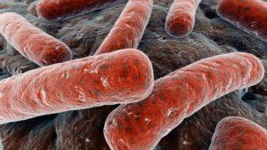 Só lyk die mukobaterium tuberkulose bakterie.