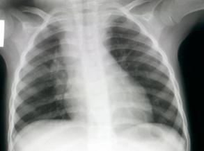 Kliere vergroot in regter hilus area met lugwegvernouing (kind met long TB)