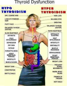 thyroid-symptoms