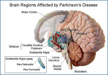 Areas in die brein wat deur Parkinson se siekte geaffekteer word