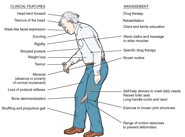 Parkinsons-Clinical-features copy