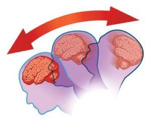 concussion-illus-350x283
