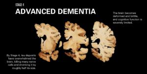 Teen stadium 4 het die Tau liggaampies byna al die neurone in die brein vernietig. Die brein het met die helfte gekrimp en is bros.