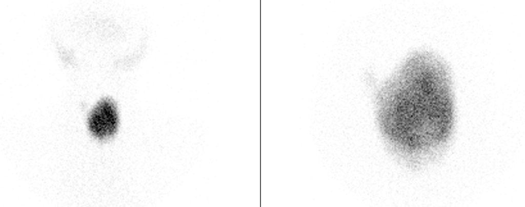 skildklier-warm-nodule