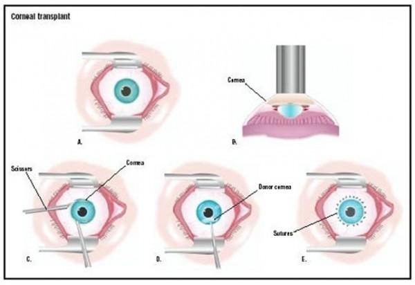 cornea-3-600x412