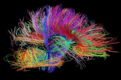 Alles wat jy wil weet oor epilepsie