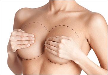 Borsveranderings chirurgie – hoe en wat word gedoen?