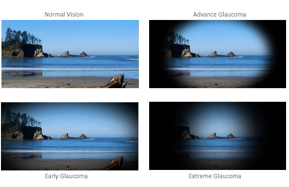 Gloukoom: vroeë opsporing kan blindheid keer