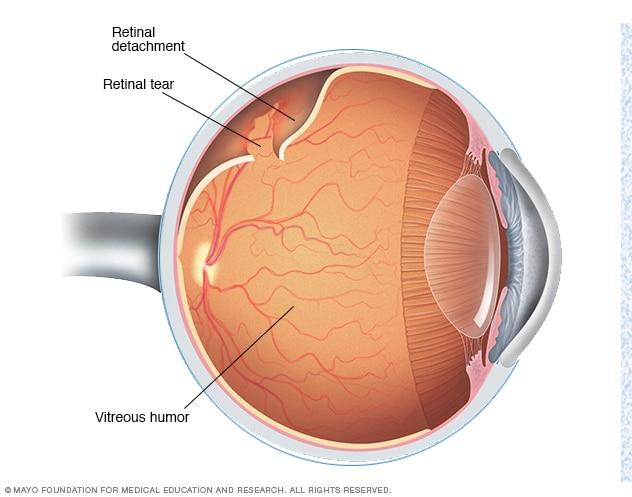 Retinale loslating en diabetiese oogprobleme